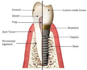 sostituzione  impianti dentali
