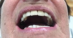testimonianze impianti dentali