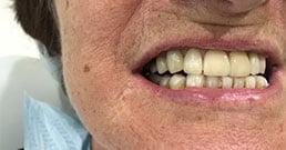 Digrignamento dei denti