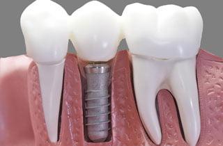Ragioni per impianti dentali