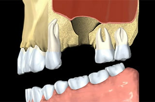 Impianto dentale con innesto osseo