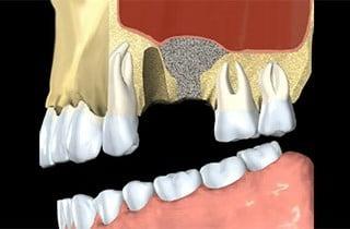 impianto dentale innesto osseo