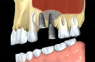 Innesto osseo per denti