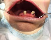 impianti dentali: opinioni