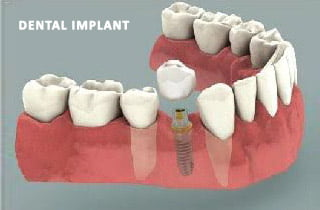 Impianti dentali controindicazioni