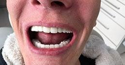 impianti dentali Ungheria