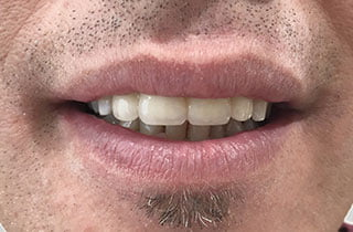 testimonianze dentisti