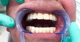 impianti dentali raccomandazioni