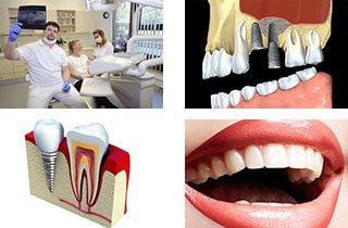 Sono gli impianti dentali permanenti