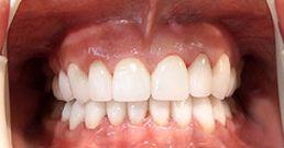 come trovare un dentista