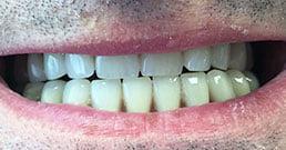 impianti dentali prima dopo