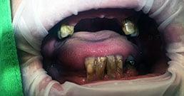 impianti dentali prima