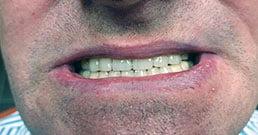 testimonianze dentali
