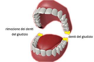rimozione dei denti del giudizio