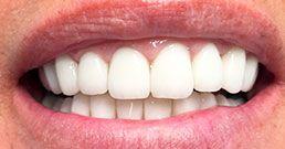 bonding dentale