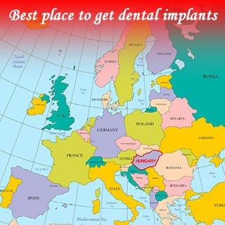 Il miglior posto per ottenere impianti dentali