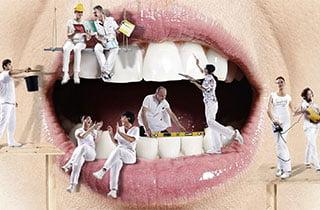 Incollaggio dentale