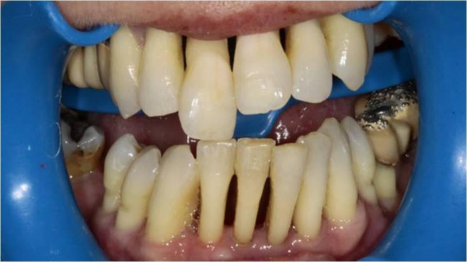 impianti dentali opinioni