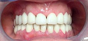 scolorimento dei denti
